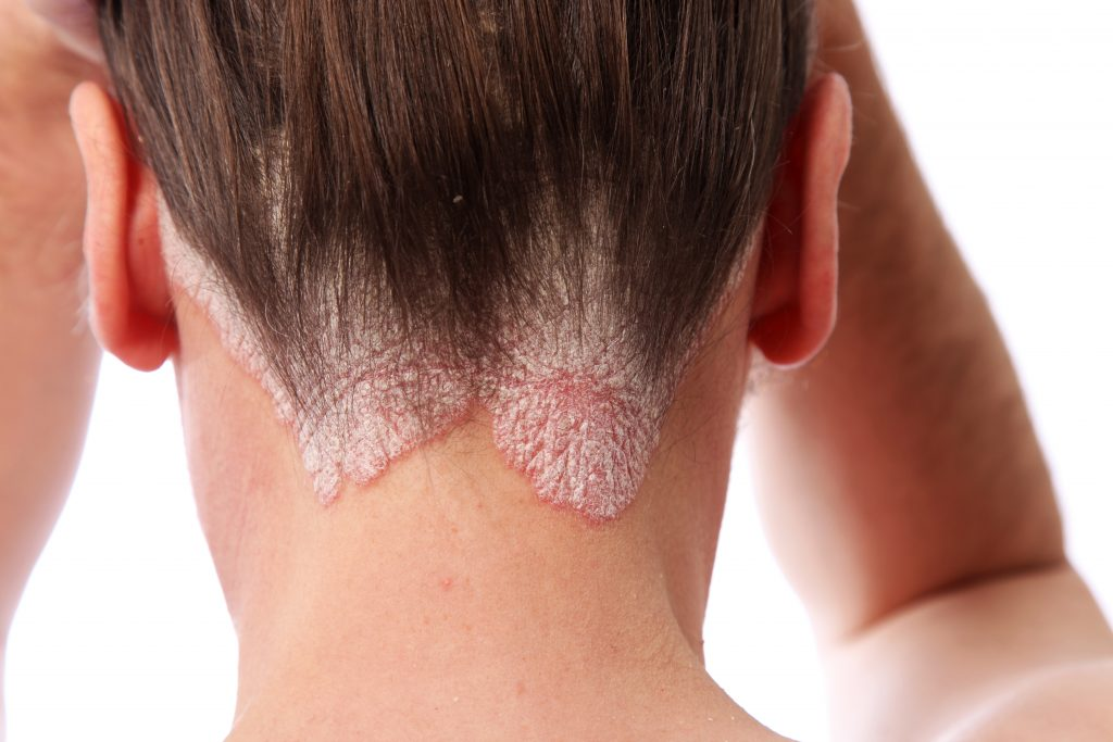 Scalp Psoriasis: Is It the Cause of Your Thinning Hair?